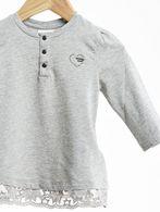 DIESEL TREYB T-Shirt & Top D a